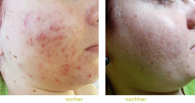 Akne-behandeln-kosmetik-pflege